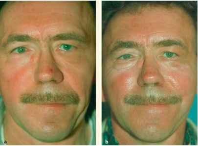 facial symmetry health