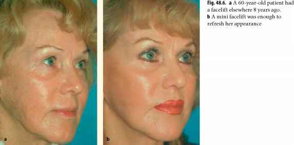 Acne Scars Facelift Photos