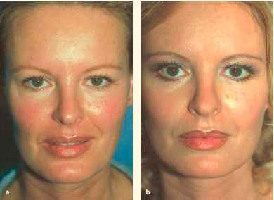 a 38 year old actress a before and b 2 weeks after midi facelift and lower blepharoplasty