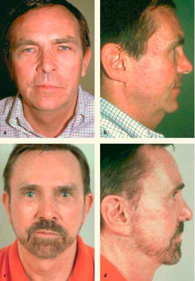 Huge Forehead Skin Grafts