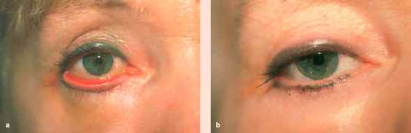 Eyelids - Aesthetic Surgery - AmeriCorps Health Blog