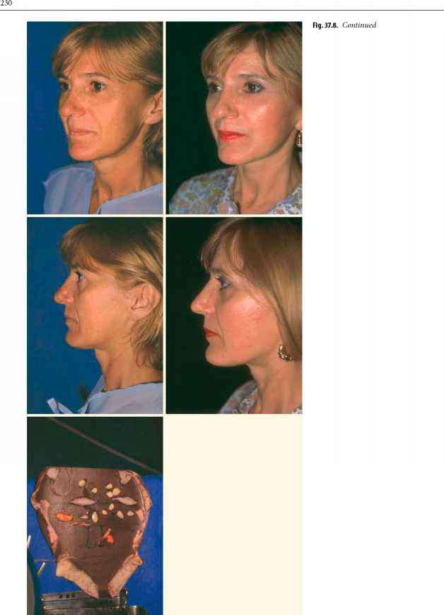 smas and temporal fascia subperiosteal facelift