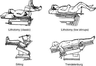 Common Positions For Anesthesia