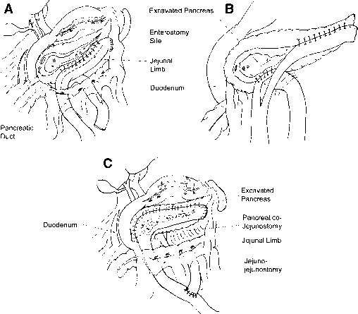 Types Pancreaticojejunostomy