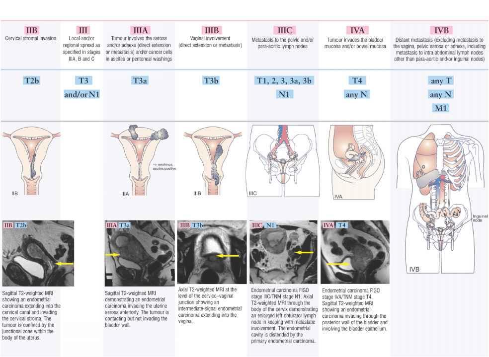 Tiers Of Cervical Cancer Figo