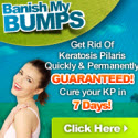 Keratosis Pilaris Cure - 75% Commission - 1:17 Conversion Rate