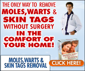 Moles, Warts and Skin Tags Removal By Dr. Davidson