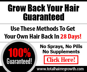 Home Treatment of Hair Loss