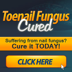 Natural Remedies for Fungal Toenails
