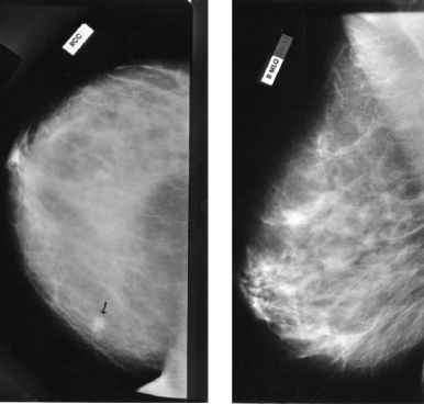 Lateral Breast