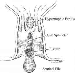 Sentinal Pile Anal Fissure