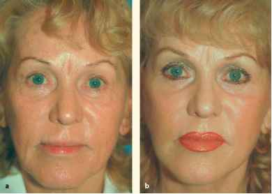 Recovery Facelift Stages