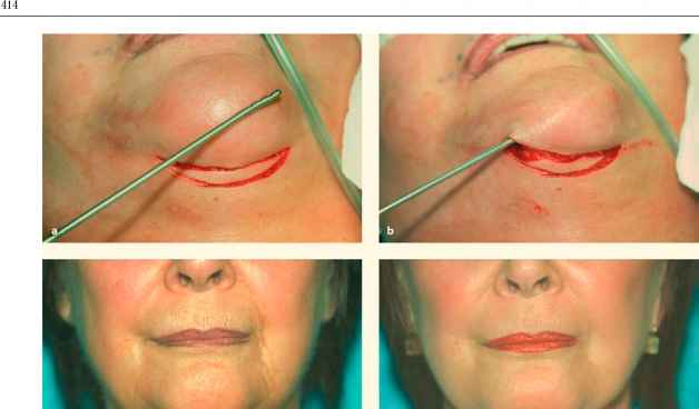 Witch Chin Plastic Surgery
