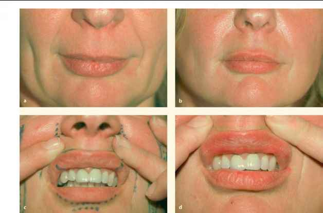Lip Surgery Before And After Com