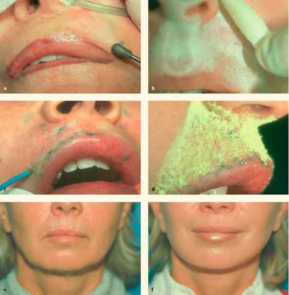 Upper Lip Dermabrasion