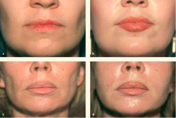 Fat Transfer Lips