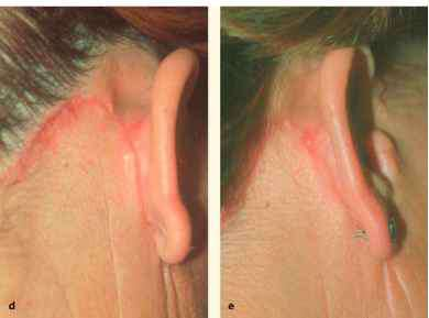 Facelifts Leave Scar Behind Ear