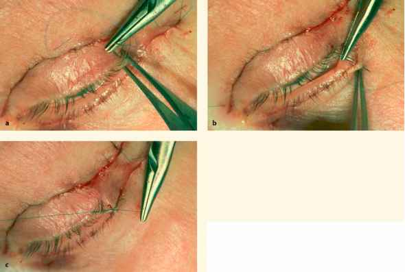 Fissure Surgery Stitches Pictures