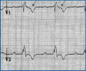 Ecg Epsilon Waves