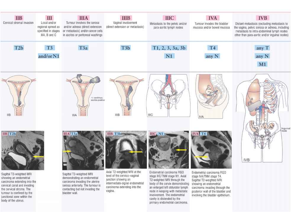 Endometrial Cancer Staging Figo