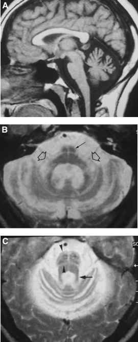 Olivopontocerebellar Atrophy Pathology